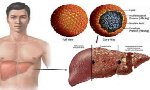 Hepatitis is an inflammation of the liver that causes liver cancer and other health problems