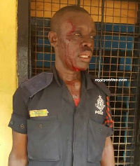 One of the injured policemen beaten by the soldiers