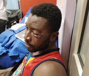 Michael Siaw was beaten by boxer Patrick Allotey