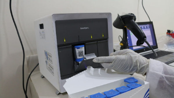 Public health physician repeats call for govt to retool TB machines for coronavirus testing
