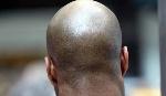 File Photo: A bald man