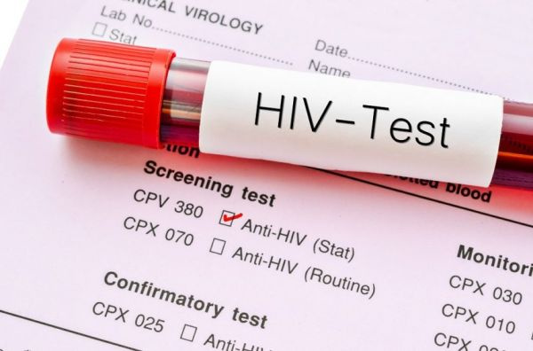 Coronavirus will affect HIV response in Ghana - Society for AIDS in Africa