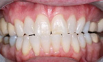 Dr. Dampare has advised the public to avoid using pieces of sticks to remove dirt from the teeth