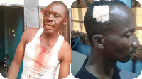 Two of the police personnel injured in the attack