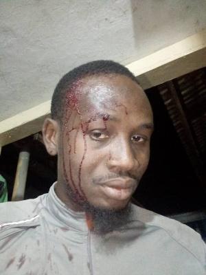 Mohammed Abdul Razak was slashed with a cutlass