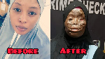 Memuna Malik before and after the accid burns