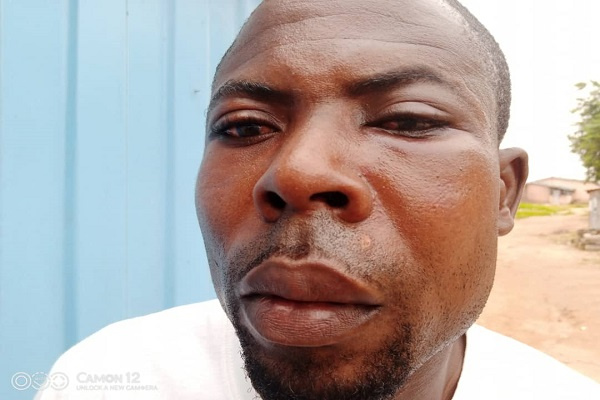 NPP polling station organiser allegedly attacked at registration centre in Effutu