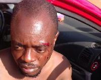 Victim John Teye