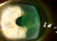 File photo: Glaucoma infected eye