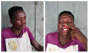 One of the assaulted taxi drivers