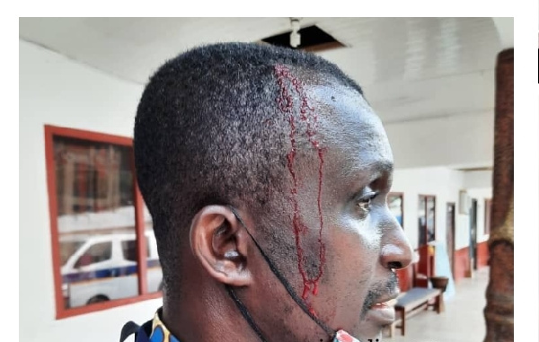 Riotous Bright SHS students beat WASSCE invigilators, journalist over strict supervision