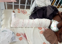 One of the children in bed with fracture on the right leg