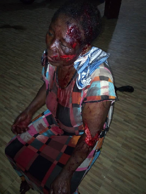 Madam Meri Ibrahim suffured several degrees of injuries after a mob attacked her