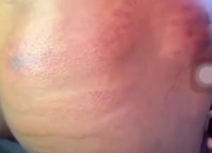 Bruises.png
