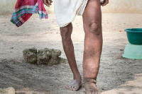 15 districts have been targeted for elephantiasis