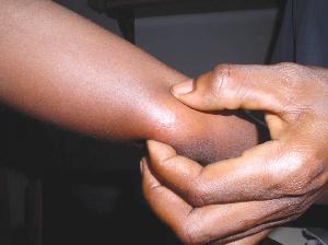 Buruli Ulcer