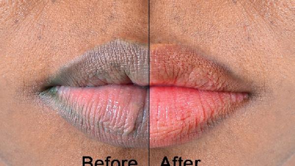 A lip photo