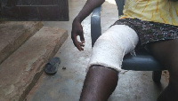 Jonathan was mistakenly hit by a stray bullet