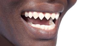 African Teeth