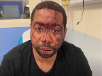 French police officers suspended for attacking black music producer