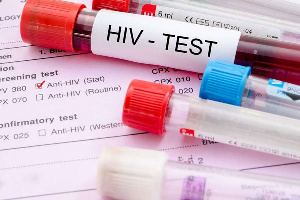 Uganda lost 21,000 HIV patients in 2019