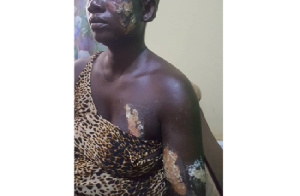 Victim of the attack with varied degrees of burns