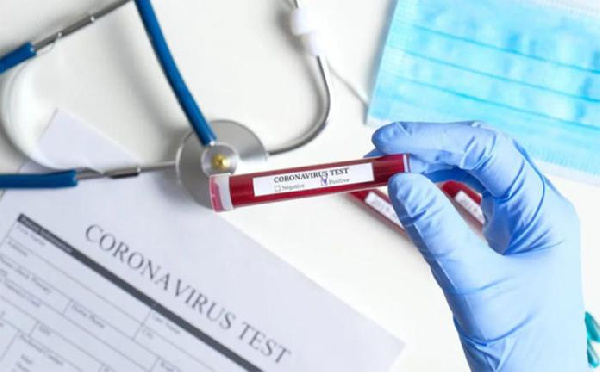 Coronavirus: Ghana's active cases pass three-thousand as deaths increase by 6