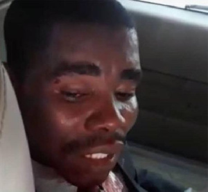 The suspect, Francis M. Nabegmado is currently in police custody