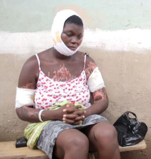 Disfigured Grace Amezando is struggling to get proper medical care