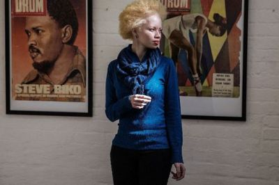 S.African model Thando Hopa revels in her albino skin