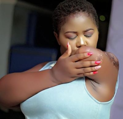 Meet the beautiful Nigerian lady with amputated arm who is motivational speaker