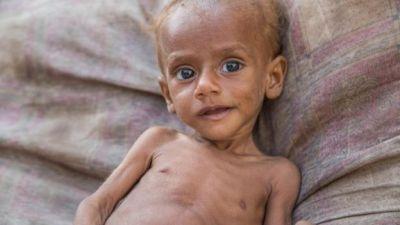 Yemen crisis: 85,000 children 'dead from malnutrition'